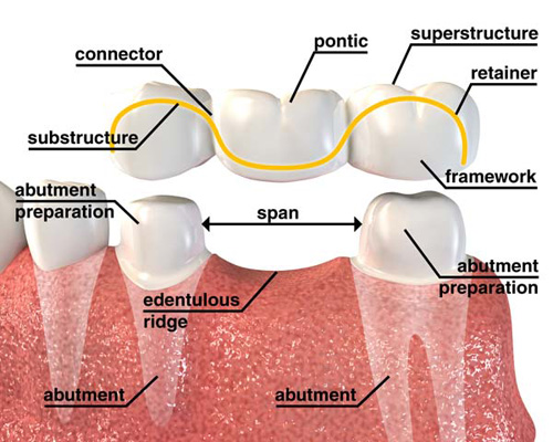 Dental Crown And Bridges Treatment In Jaipur Rajasthan